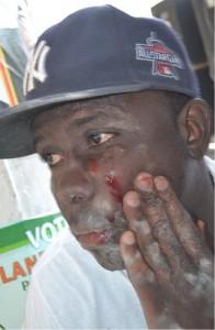 Wounded Barikad Crew technician. Image courtesy Sitwayen Pou Mirlande @Zogrann.