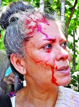 Injured Rahnuma Ahmed. Image courtesy ShahidulNews.