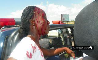 Une victime de violences pré-électorales a la veille du second tour au Liberia. Image de @liberiaelection