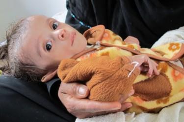 Ernstig ondervoed Jemenitisch kind, Sanaa, Jemen, april 2012. Foto van Al Jazeera (CC BY-NC-ND 3.0).