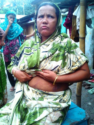 Masuma, a poor housewife was attacked by knife on April 1, 2012 night. She is showing her scars. Image by Arif Hossain Sayeed.