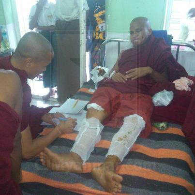 A monk hospitalized with burn injuries. Photo from CJ Myanmar Facebook Page.
