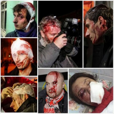 "An anonymous collage circulated online. Majority of people pictured are journalists beaten by the police or ""unidentified"" perpetrators."