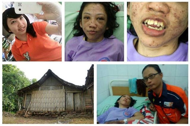 Erwiana Sulistayaniangsih, a foreign domestic helper from Indonesia, was found severely injured in the Hong Kong airport when she returned home last week on January 10. She told her fellow maid on flight that she was beaten and tortured for months but too scared to report the case to the police. She was hospitalized soon after she arrived and the case was exposed. More from Hong Wrong.
