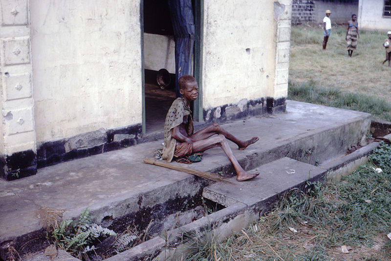 A malnourished refugee during the Nigerian Civil War. Public Domain photo by the Center for Disease Control and Prevention (CDC).