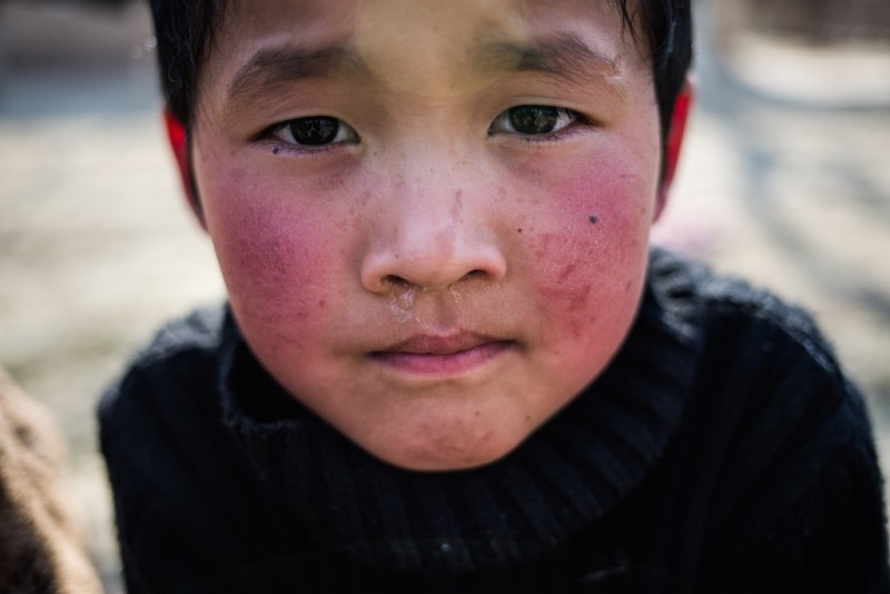 A six-year-old boy whose parents divorced after they both went to work in Russia. In fact, his father began a relationship with another woman and subsequently gave up on his mother. Chek village, Batken oblast.