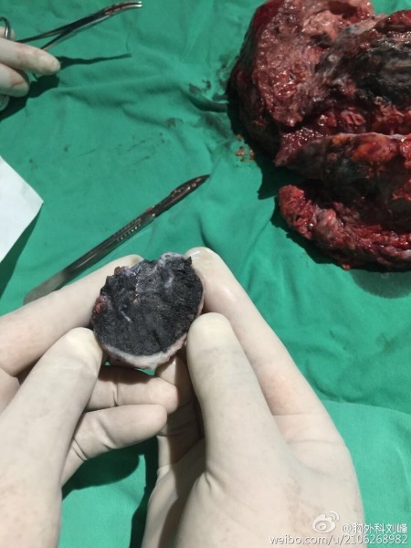 A doctor took out a black nugget from Ren Nengping's lungs. (From Liu Feng's Weibo.)