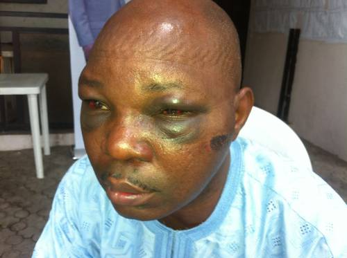 Yomi Olomofe, Nigerian journalist that was physically assaulted by the police (Photo credit: SaharaReporters Media)