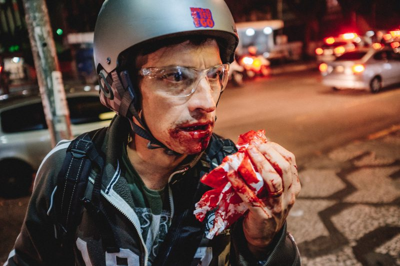 Photographer Fernando Fernandes was hit by rubber bullet on the mouth on Thursday in São Paulo. Photo: Mídia Ninja, CC-BY-SA 2.0