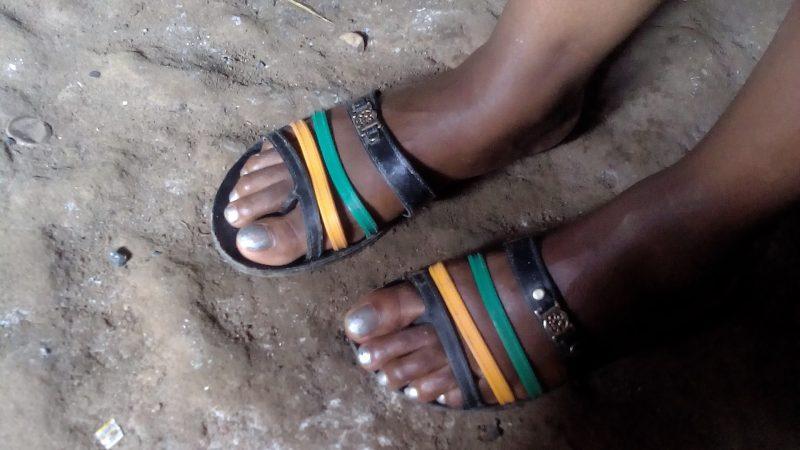 Les pieds d'une travailleuse du sexe à Bwaise, un bidonville du nord de Kampala. Crédit photo: Prudence Nyamishana